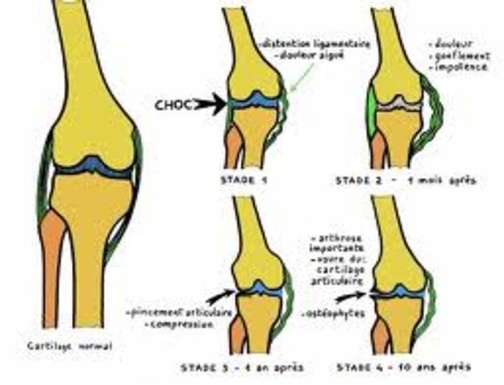 genou douloureux en flexion